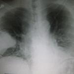 Как победить пневмонию