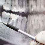 Почему надо удалять зубы мудрости