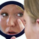 Как кожа сигналит о проблемах с кишечником