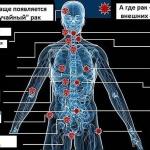7 видов рака, развитие которых провоцирует алкоголь