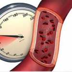 Ученые назвали неожиданное преимущество высокого кровяного давления