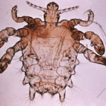 Учёные: Лобковая вошь может исчезнуть