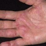 Первые симптомы рака проявляются на руках