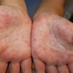 Энтеровирусная инфекция и меры ее профилактики