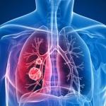 Ученые назвали чистящие средства причиной тяжелого заболевания