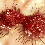 Врачи назвали первые признаки рака