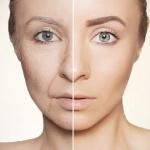 Обнаружена неожиданная причина преждевременного старения