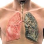 Онколог назвал простейший способ бросить курить